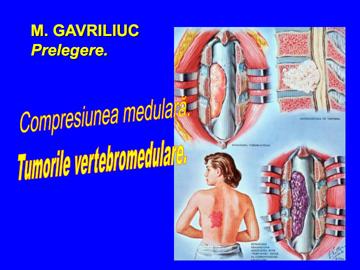 Compresiunea medulara [usmf]