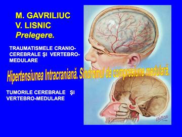 Hipertensiunea intracraniana [usmf]